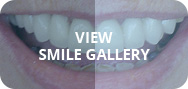 View smile gallery